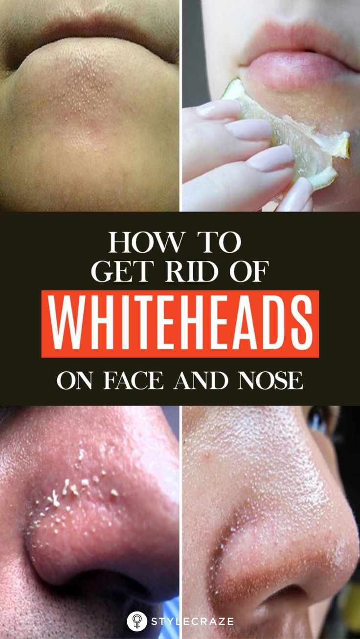 25 Best Remedies To Get Rid Of Whiteheads On Face And Nose