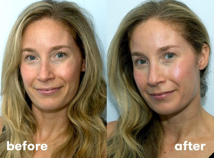 I Tried At-Home Fillers, And The Results May Surprise You