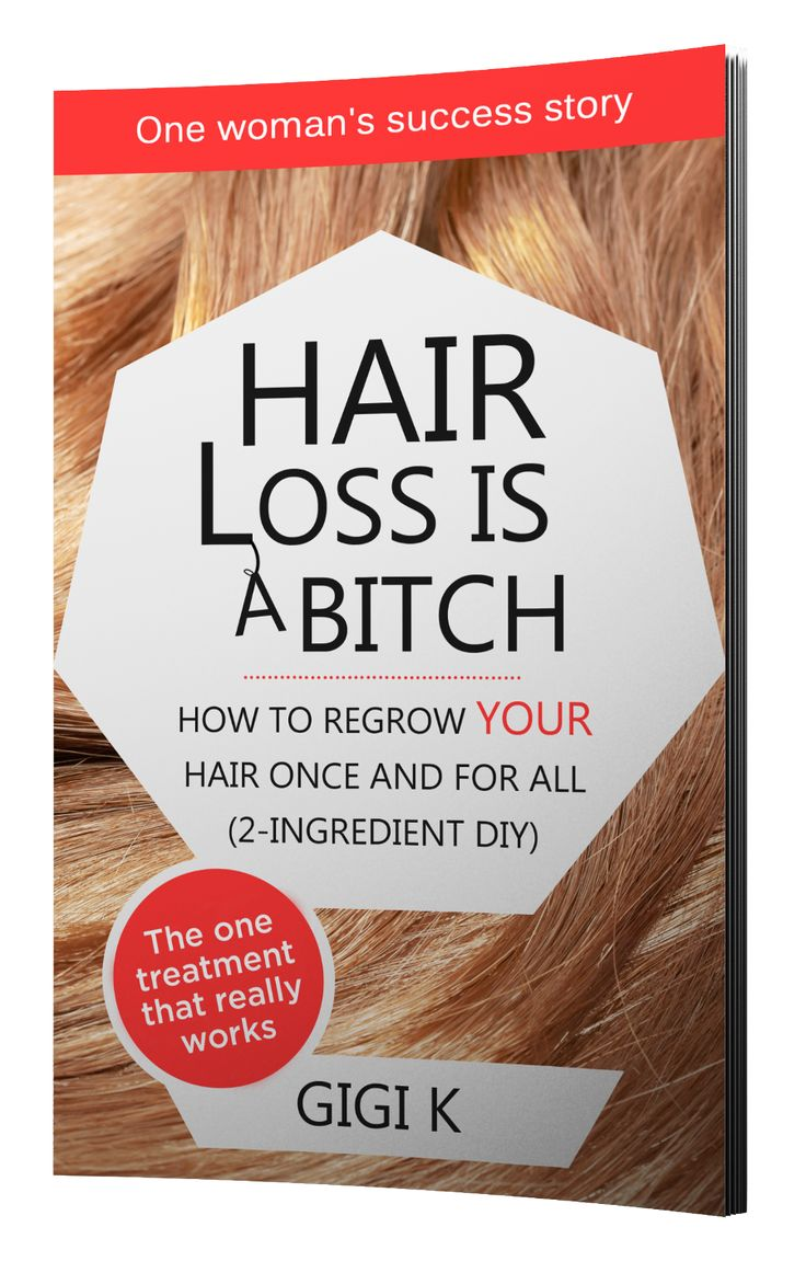 Hair Loss Treatment For Women | Hair loss treatment, hair loss treatment for women, best hair loss treatment, hair loss treatments