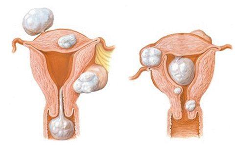 No sabia que los  #miomas tenian  un tratamiento tan bueno como el de centro ginecologico http://www.centroginecologico.mx/miomas.html
