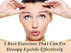 how to fix dark eyelids