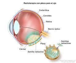Radio contra cáncer de ojo.