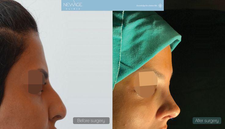 Rhinoplasty Surgery performed by Özge Ergün, MD  *** For more information 📲 WhatsApp: 0090543 470 47 09***  #PlasticSurgery