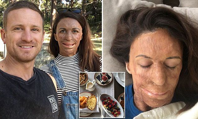 Pregnant Burns survivor Turia Pitt enjoys weekend break | Daily Mail Online