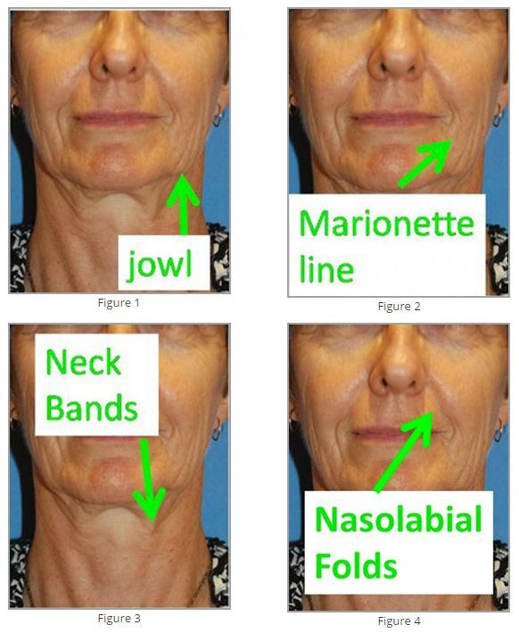 seattle facial rejuvenation doctor