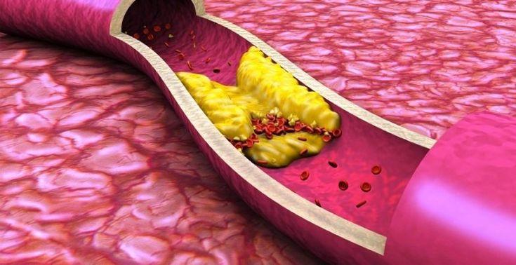 10 продуктов, очищающих артерии