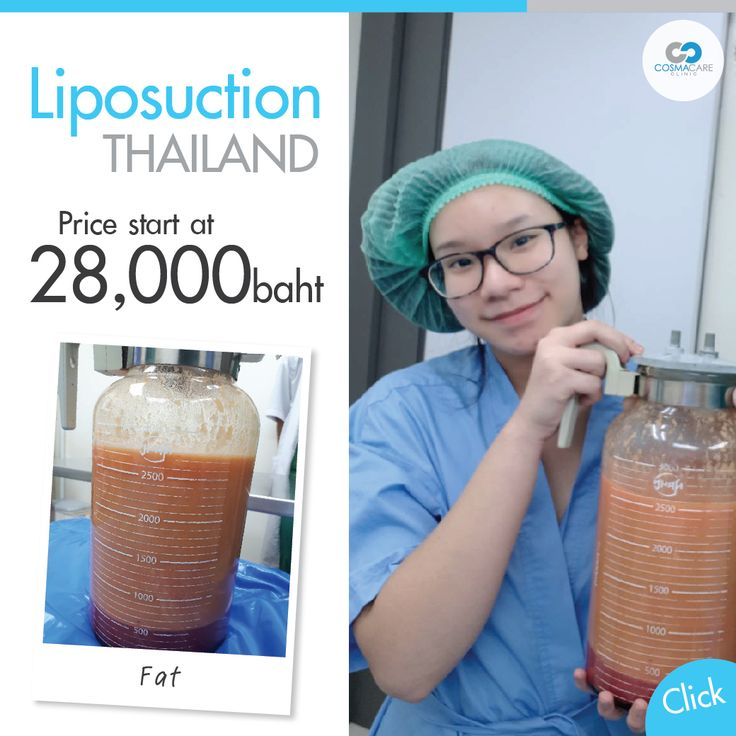 VASER Liposuction Remove excess fat on the spot. Liposuction can be performed at…
