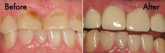 Porcelain Crowns & Composite Fillings Before and after