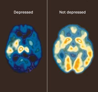 Top Five Foods For Beating Depression - How To Beat Depression With The Right Diet | Search Home Remedy