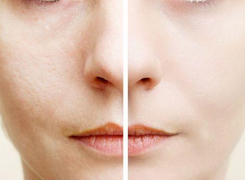 美肌を目指して日々スキンケアに励む女子はたくさん!化粧品にお金をかけてもニキビや乾燥などに悩まされることもありますよね…(泣)実はその原因は「美肌菌が足りていないから」なんだとか!そこで肌トラブル0を叶える美肌菌を増やす方法を紹介します♡