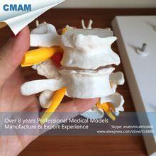 CMAM-VERTEBRA12P Promotion Economic Medical Gift Lumbar Vertebrae Osteoporosis 4-stage Anatomical Model Set //Price: $US $36.99 & FREE Shipping //
