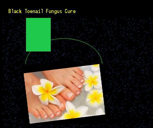 Black toenail fungus cure  Nail Fungus Remedy. You have nothing to lose! Visit