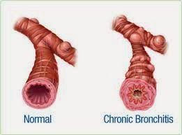 Obat Herbal Bronkitis Kronis paling efektif hanya dengan Cordyceps Plus Capsule. Obati Bronkitis tanpa efek samping dan tanpa kambuh lagi !