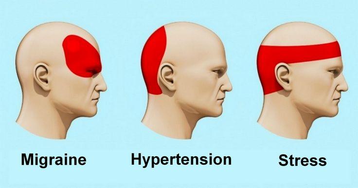Lorsque vous avez un mal de tête, vous avez peut-être le réflexe de courir vers le paracétamol ou l'aspirine. Mais sachez qu'il existe une façon scientifique de se débarrasser d'un mal de tête : l'acupression.Il s'agit d'une sorte de massage dont l'efficacité a été confirmée par de nombreuses études scientifiques. De par sa nature, c'est une forme d'acupuncture et de réflexothérapie mais qui n'exige aucune connaissance médicale spécifique.Comment masser...