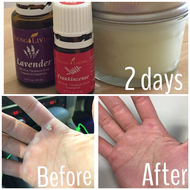 So after Crossfit on Friday my hands were ripped and killing me. I went home made a cream with raw hemp seed oil, coconut oil and added 20 drops of young living lavender and frankincense essential oils!!! My hand within 24 hours already felt better but by Sunday morning was back to normal! I also used the cream on my sons heat rash on his cheek and overnight it's almost disappeared. https://www.youngliving.com/signup/?isoCountryCode=US&sponsorid=2187443&enrollerid=2187443