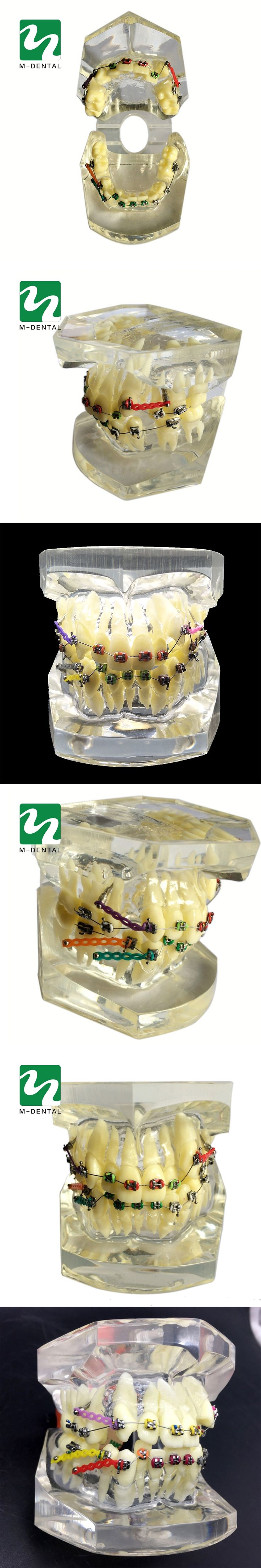 1PC Dental Orthodontic Study Model Transparent Teeth Malocclusion Orthodontic Model With Colorful Brackets&Hot Sale for Teaching