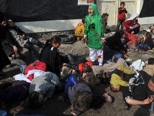 Premio Pulitzer de fotografía de 2012   Para Massoud Hossaini de Agence France-Presse por la desgarradora imagen de una niña envuelta en llano tras un atentado suicida en Kabul
