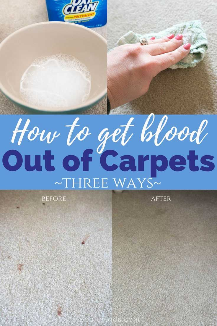 Remove Blood Stains How To Get Blood Out Of Carpet 3 Ways