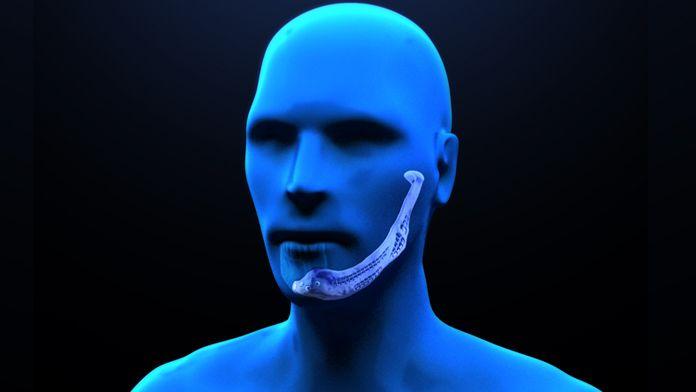 Una protesi artificiale che ha riprodotto fedelmente le caratteristiche anatomiche della porzione mancante e deformata della mandibola del paziente