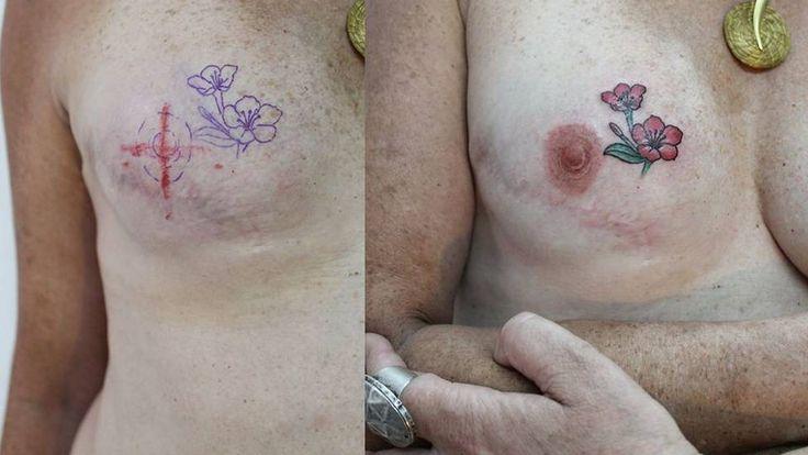 Tatuador brasileiro cria projeto gratuito para recuperar autoestima de pacientes de câncer de mama  #cancer  #mastectomia  #cura  #tattoos  #tatuagem