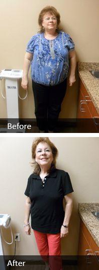 weight loss oshkosh wi