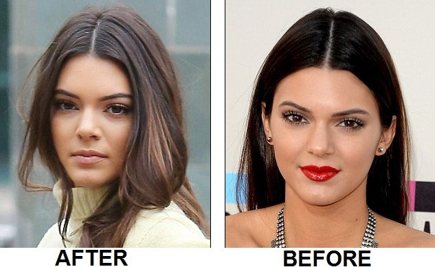 Kendall Jenner nose job and plastic surgery before and after pictures