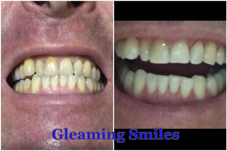 Happy customer. Great results. Book now with gleaming smiles. Real results with professional qualified dental auxiliary staff. www.gleamingsmiles.com.au
