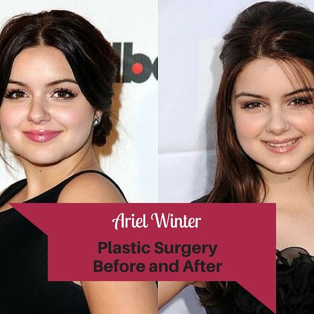 Ariel Winter's Plastic Surgery Before and After ♥ See more celebrity trivia at http://www.celebritysizes.com/ ♥ #Ariel #Winter