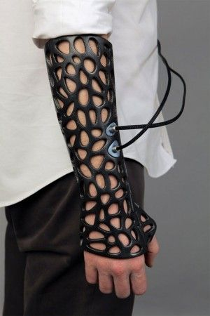3D-printed ultrasound cast could save us costly surgeries | Ars Technica