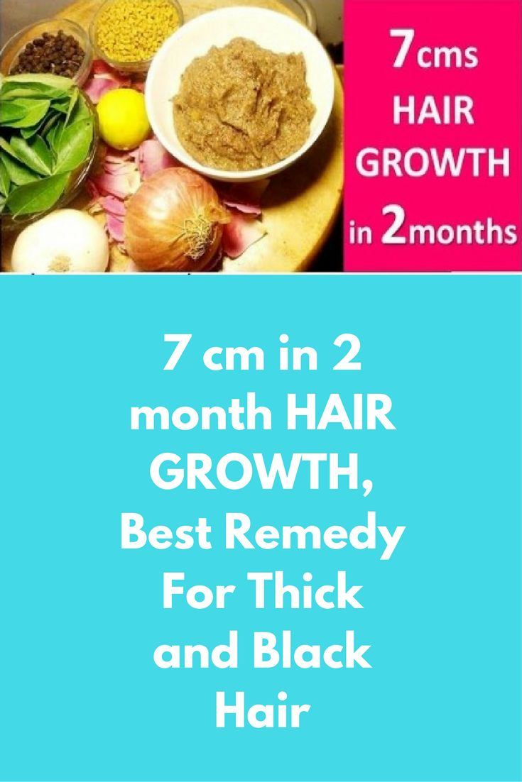 7 cm in 2 month HAIR GROWTH, Best Remedy For Thick and Black Hair Ingredients required are : Clove – 1 no.s Hibiscus flower – 2 no.s Nigella sativa seeds ( Kalonji ) – 1 teaspoon Fenugreek ( methi ) – 1 teaspoon Curry Leaves – 20 leaves Onion – 1 no.s Lemon – 1 no.s Rose flower – 1 no.s Directions to prepare : Add fenugreek seeds,nigella seeds …