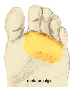 Ball of Foot Pain Area