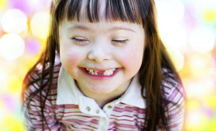 Down Sendromlu Bir Çocuk Yetiştirmek: Zorlukları ve Ödülleri
