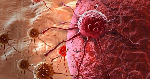 Pour traiter ces cellules cancéreuses, les médecins proposent soit une opération chirurgicale, soit la chimiothérapie. Or, cette dernière alternative détruit les cellules saines et endommage l'organisme. Heureusement, il existe des remèdes naturels qui peuvent prévenir cette maladie...