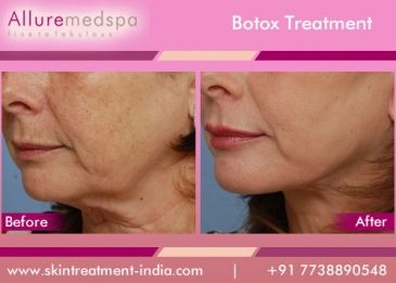 Botox injections are the best known of a group of medications that use various forms of botulinum toxin to temporarily paralyze muscle activity.It can give you younger look.
