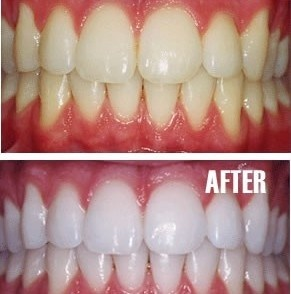 Put a tiny bit of toothpaste into a small cup, mix in one teaspoon baking soda plus one teaspoon of hydrogen peroxide, and half a teaspoon water. Thoroughly mix then brush your teeth for two minutes. Remember to do it once a week until you have reached the results you want. Once your teeth are good and white, limit yourself to using the whitening treatment once every month or two   The Beauty Thesis