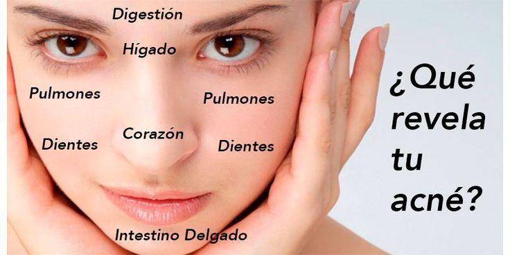 """Muchas veces creemos que el problema detrás del acné es un desorden hormonal, pero esto no siempre es así. Nuestro rostro refleja nuestras emociones, pero también nuestra salud general. Anuncio Algunos doctores pueden diagnosticar un problema al mirar un rostro debido al """"mapeo"""" de la cara; el mapa de la cara puede ser una clave […]"""