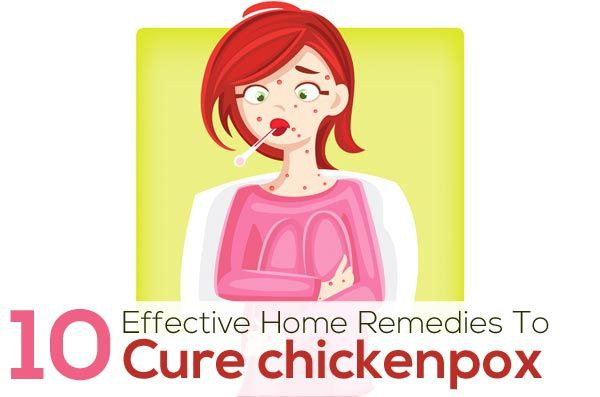 how to help itching from chicken pox