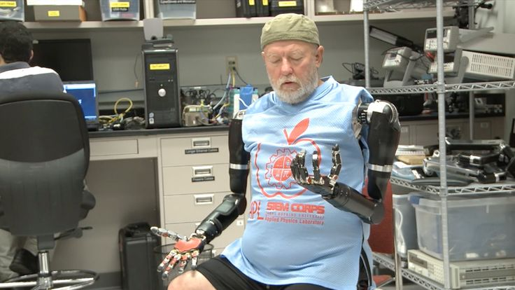 Les Baugh is now the first bilateral shoulder-level amputee to wear and control two robotic prosthetics at once. WOW! Just Wow!