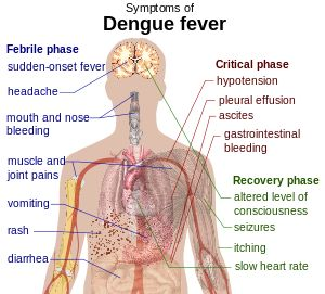 Dengue Fever,Symptoms,Treatment Facts