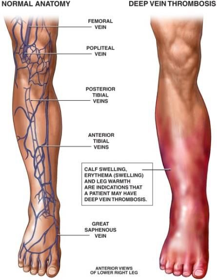 Dangerous Blood Clots Form In The Leg Veins Of Over 2 5