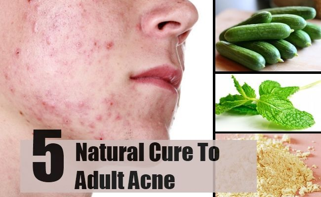 Adult Acne Natural Cure The best acne treatment theacnecode.com