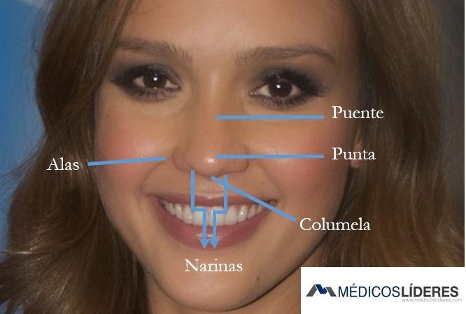 Cirugía para nariz ancha con resultados naturales Rinoplastia de nariz ancha y punta bifida: Obsérvese dorso recto. En el después puede ver cómo la nariz es más delgada. Si desea ver doctores recomendados y precios directamente haga clic aqui  ¿Por qué realizarse la rinoplastia para nariz ancha? La nariz es el centro del rostro …