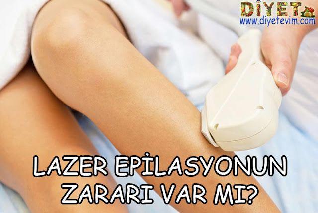 lazer epilasyon nasıl yapılır