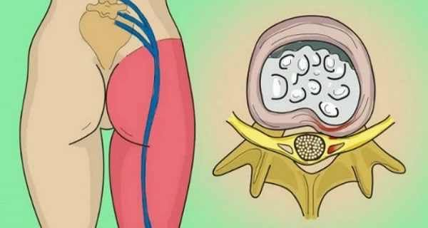 An intervertebral disk can pressure a nerve due to a protrusion and cause a painful condition known as sciatica. Sciatica is the pain in the sciatic nerve which spans from the lower back to the hips and buttocks and down to each leg. This condition can oc