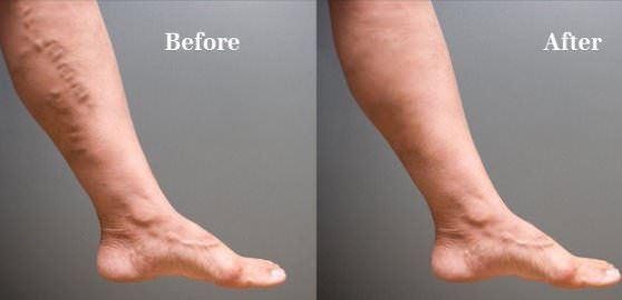 How to use home remedies to get rid of spider veins naturally? Spider veins are turning red, purple,...