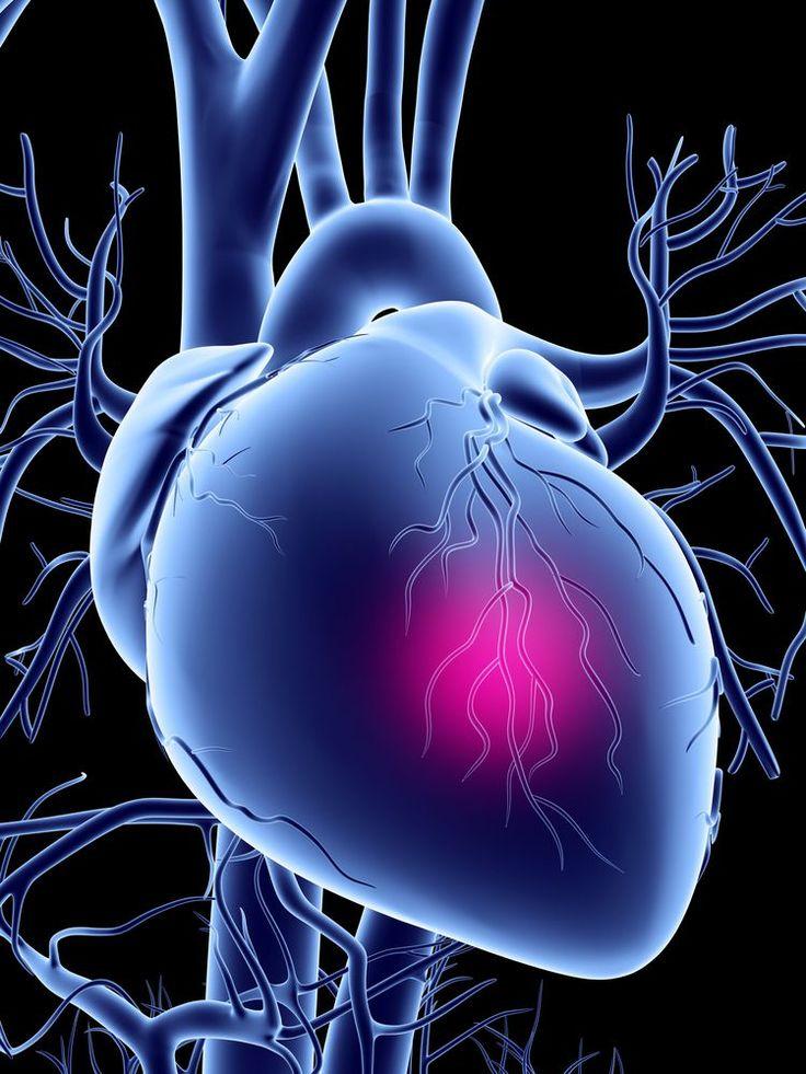provigil heart disease