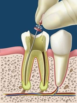 El tratamiento endodóntico comprende todos aquellos procedimientos dirigidos a mantener la salud de la pulpa dental o de parte de la misma. ...