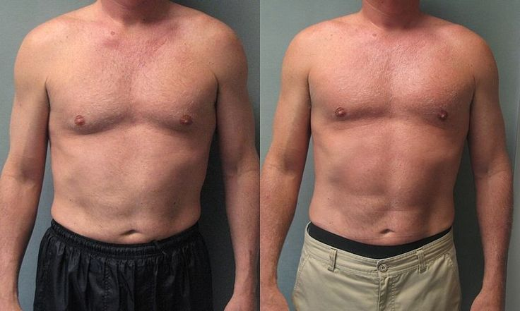 Gynecomastia Surgery Before and After If you are considering a general dentist click on the image to learn more.