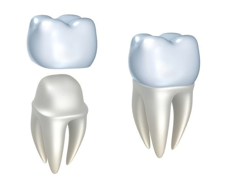 A crown is a type of cap that completely covers a real tooth. It's made from either metal, or porcelain and metal, and is fixed in your mouth. Crowns can be fitted where a tooth has broken, decayed or been damaged, or just to make a tooth look better.