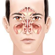 La sinusite è un'infiammazione della mucosa dei seni paranasali. In termini semplificati è un disturbo che attacca la zona intorno al naso, ma si può estendere alle tempie, alle mascelle ed a tutta la zona della fronte e della testa. Può essere temporanea...
